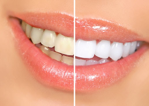 Photo of smile showing half before and after teeth whitening