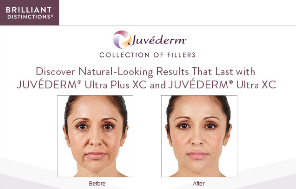 Visit The La Jolla Institue of Plastic Surgey to scheduled your appointment Juvederm fillers!