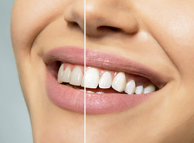 Image of before and after teeth whitening