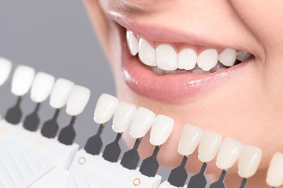 patient choosing correct shade of dental veneers