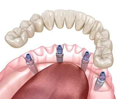 3D render of all on four dental implants