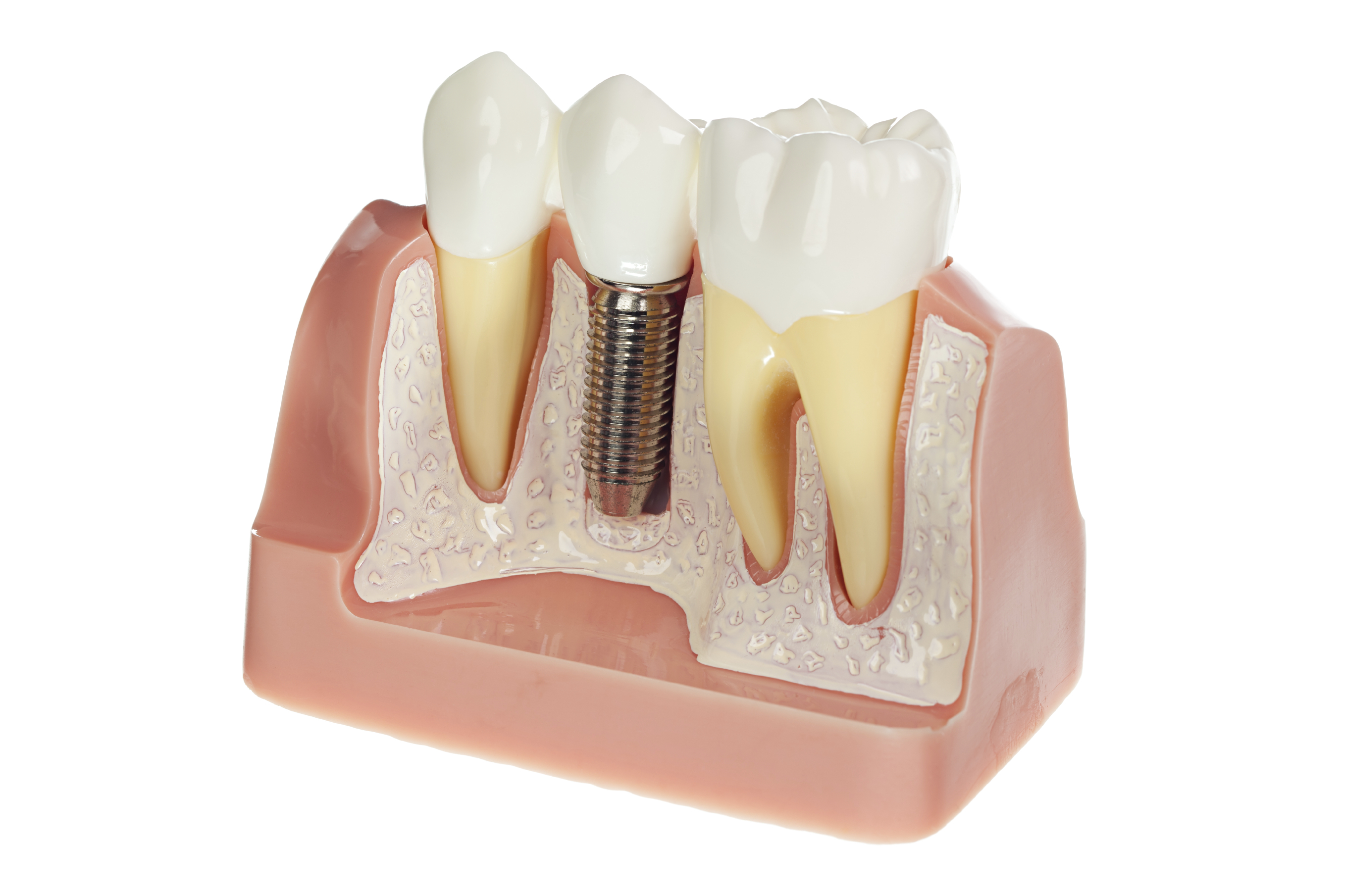 Corona Dental Implant Options - Single & Multiple