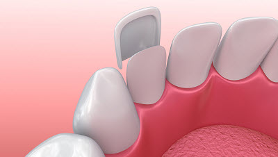 3d render of dental veneer placement