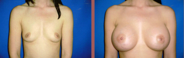 Breast Lift Recovery before and after