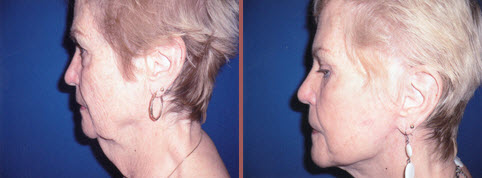 Facelift before and after in phoenix