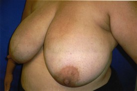 Breast reduction before photo in Phoenix, Arizona by Dr. Chasby Sacks