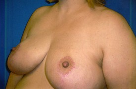 Breast reduction after photo by Phoenix, Arizona plastic surgeon Dr. Chasby Sacks