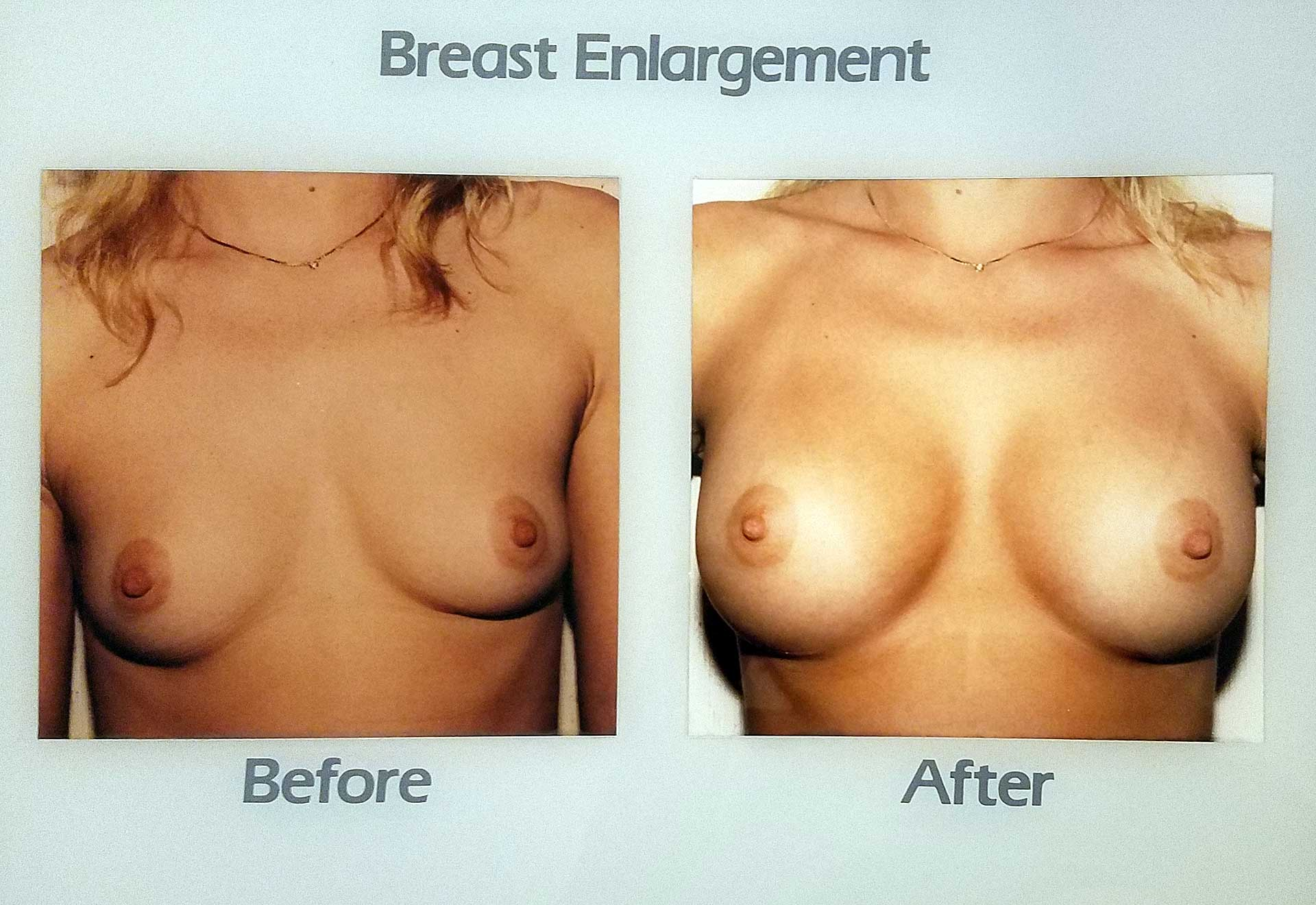 before and after breast enlargement