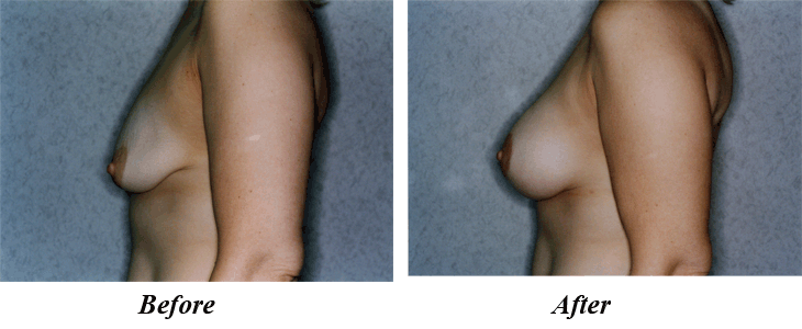 silicone breast implant over muscle