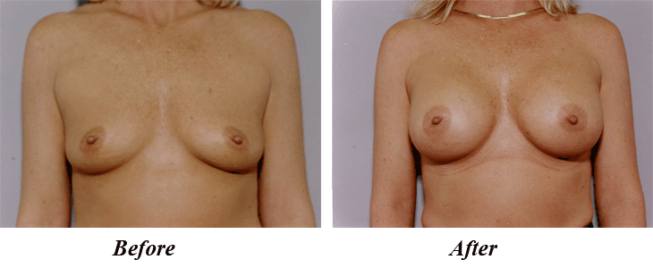 minneapolis breast augmentation