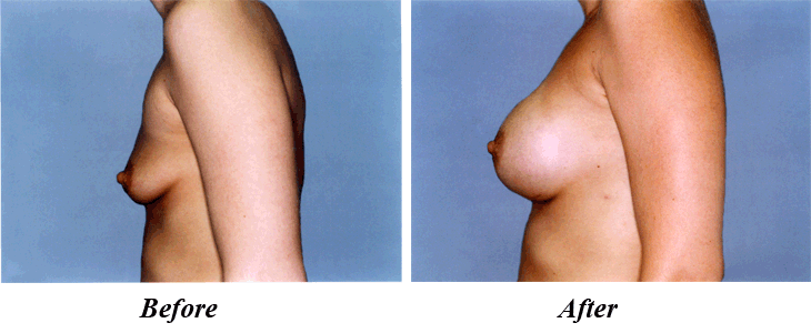 over muscle breast implant