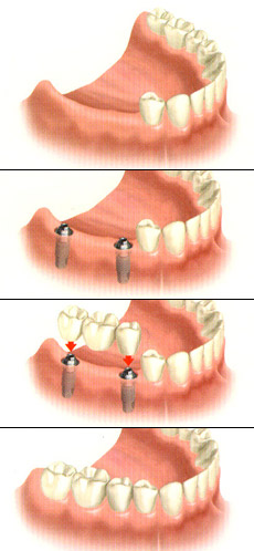 Multiple Tooth Replacement in Toledo