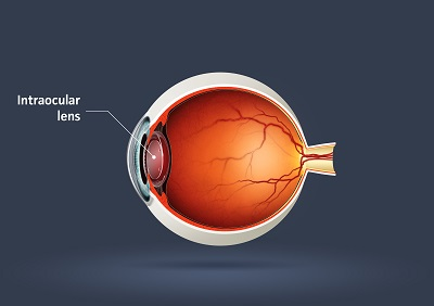 Image of Human eye - intraocular lens illustration