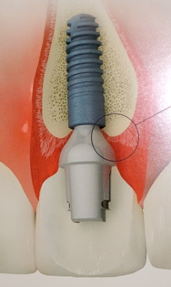 A dental implant is an artificial root replacement