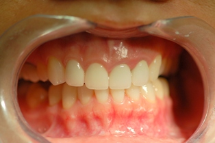 before and after lava crowns