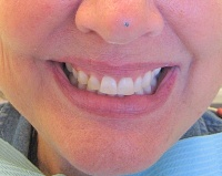 before dental veneers in milpitas
