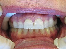 milpitas before dental veneers