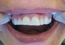 veneers in milpitas