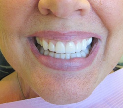 after milpitas veneers placed