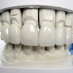 Veneers on the Study Model for patient presentation
