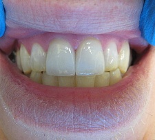 veneers placed and bonded