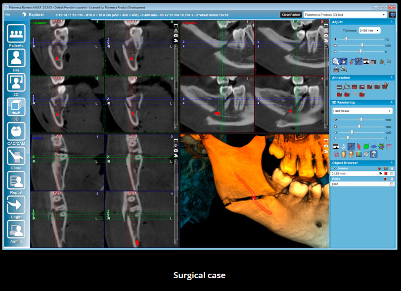 surgical case scan