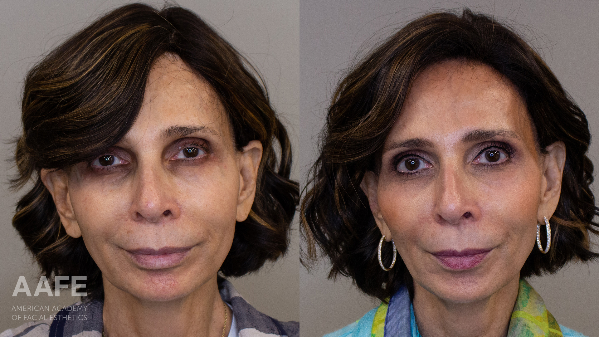 Before and After Photo of Woman