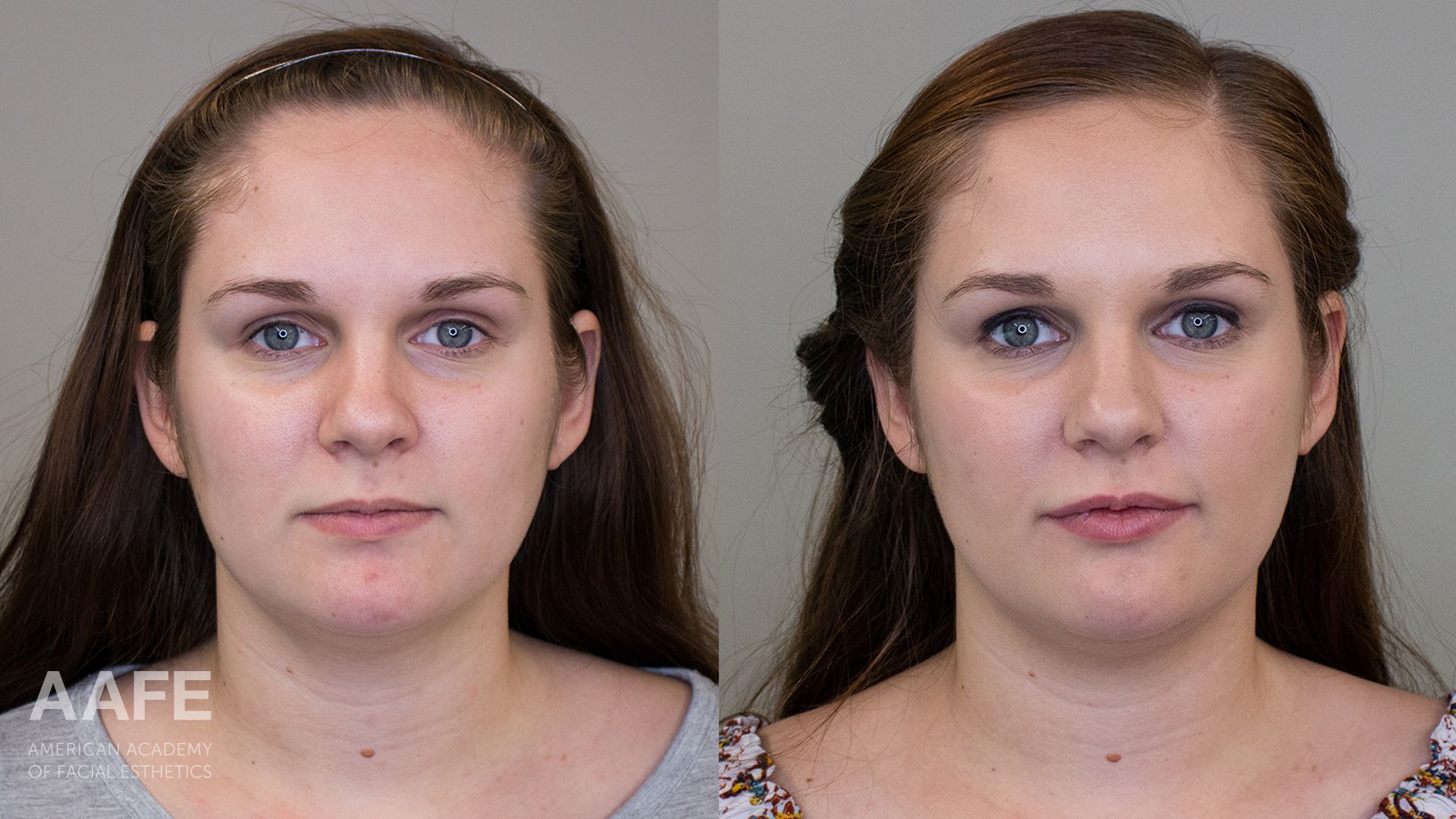 Before & After Photo of Woman