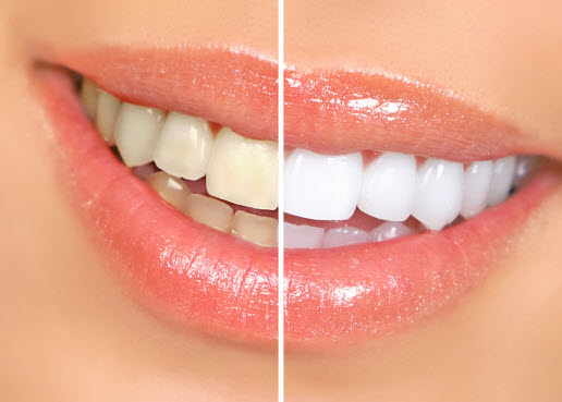 side by side view of before and after teeth whitening results