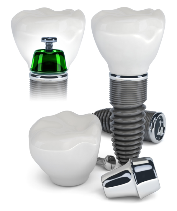 Dental Implants in Annapolis, MD