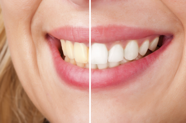 Teeth whitening in annapolis smile transformation