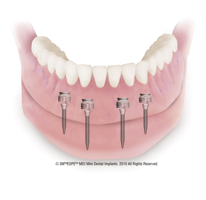 Mini Dental Implants in Medfield