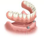 removable implant retained denture