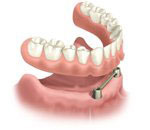 removable implant anchored overdenture