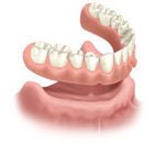 treatment options when all teeth are missing