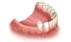 replacing several missing teeth with fixed bridge