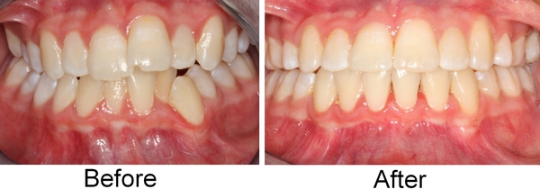 Orthodontics-Before-and-After-Braces-Odessa-Texas-79776