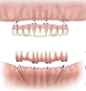 Dental Fixed Dentures at Dental Solution P.A. in Odessa and Midland, TX