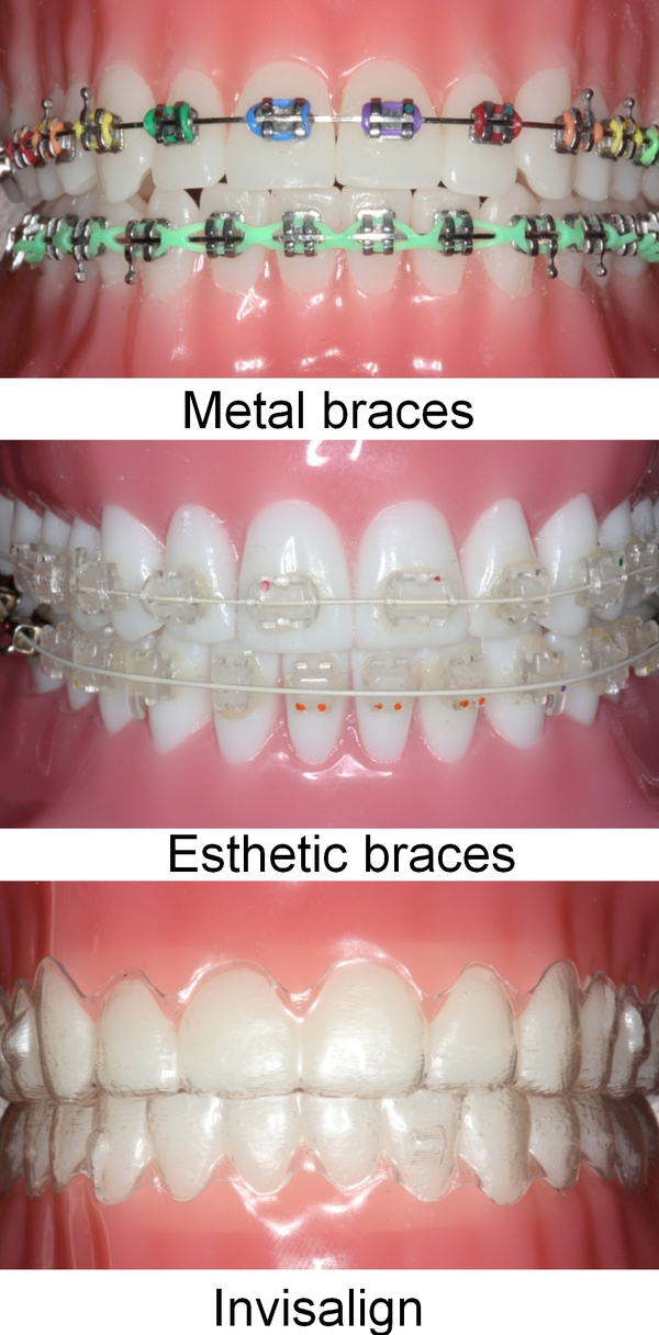 Metal-Braces-Esthetic-Braces-Invisalign-Odessa-Texas-Orthodontics