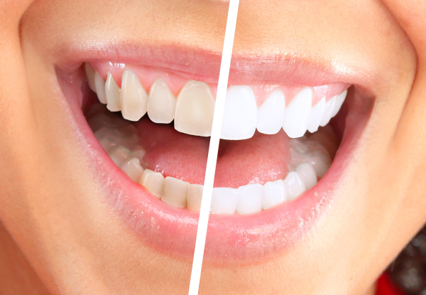 Teeth Whitening in Torrance, CA