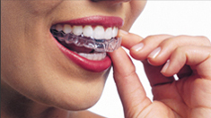 Invisalign Dentist in Falls Church