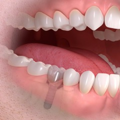 Dental Implants in San Ramon