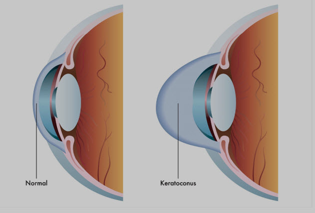 keratoconus diagram