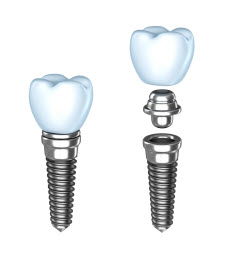 Image of Dental Implants in West Houston