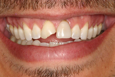 Prosthodontic Cosmetic Dentistry Picture 2 - Before