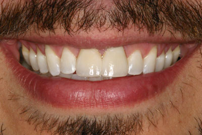 Prosthodontic Cosmetic Dentistry Picture 2 - After