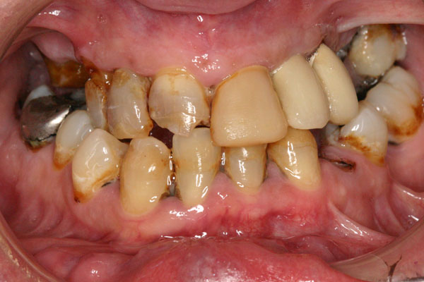 Before All-On-4 Dental Implants Picture