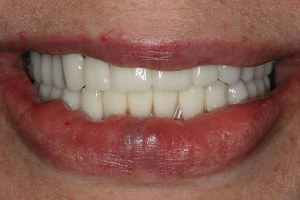 After All-On-4 Dental Implants Picture
