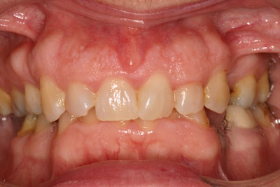 Prosthodontic Cosmetic Dentistry Picture 1 -Before