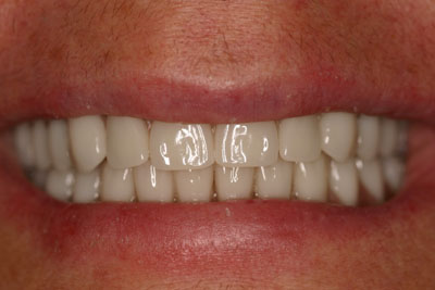 Prosthodontic Cosmetic Dentistry Picture 1 - After